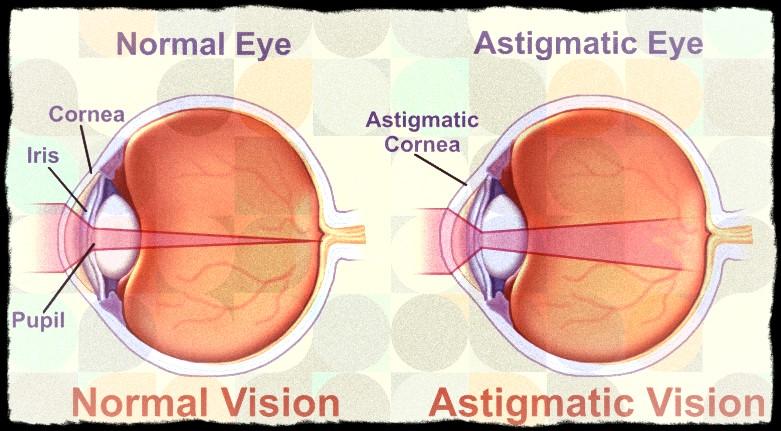 Normal vs Astimatic Eye